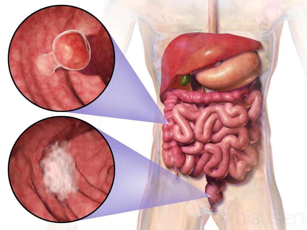 cancer colon sau colorectal