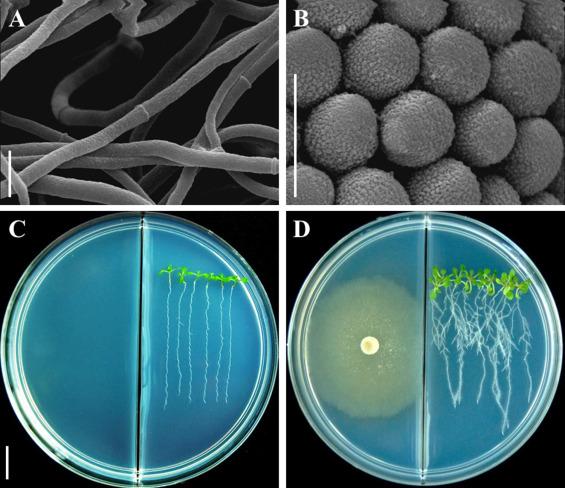 Infecție cu papilomavirus și condiloame în timpul sarcinii - Teste