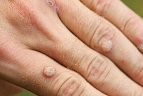 HPV, pericol tacut - Medsana Romania