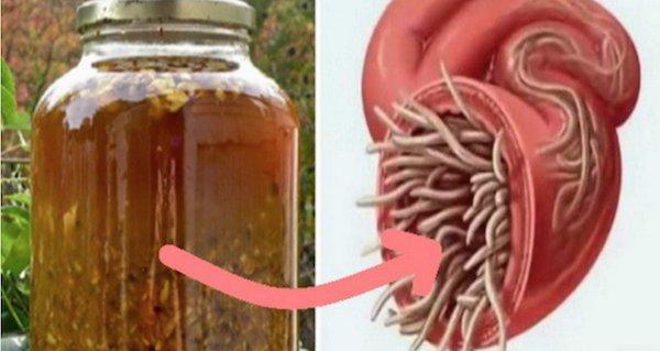 pastila care omoara paraziti in corp