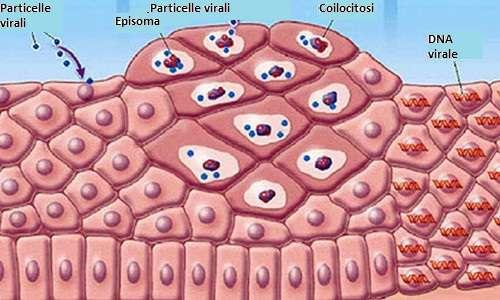 Papilloma virus uomo tumore Papilloma virus percentuale tumore
