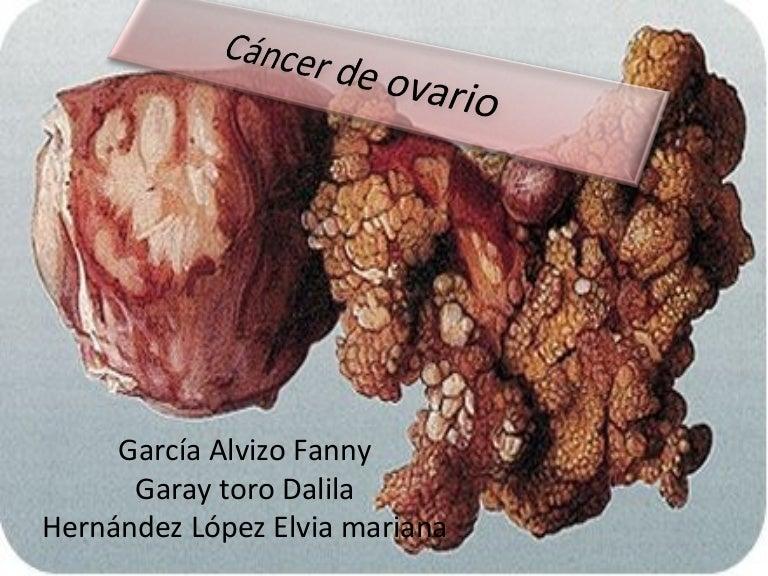 Cancer colon definition Cancer de colon