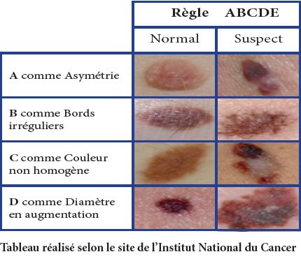 Tumori benigne vs. Tumori maligne Cancer cellule maligne
