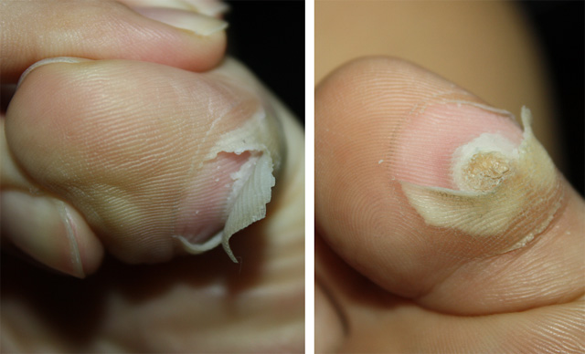 Hpv wart on foot. Fișier:Papilloma Virus (HPV) csrb.ro - Wikipedia Warts is cure