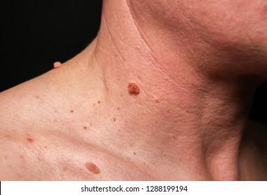 tratament anti papiloma papiloame sub recenziile tratamentului armelor