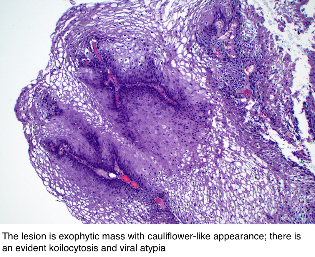 papillary urothelial hyperplasia pathology outlines