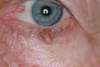 que es papiloma en los ojos cancer feminin le plus mortel