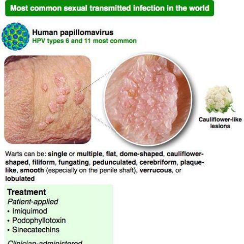 human papillomavirus hpv infection