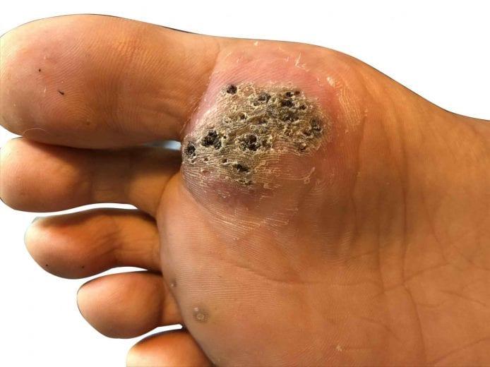 wart on foot toe