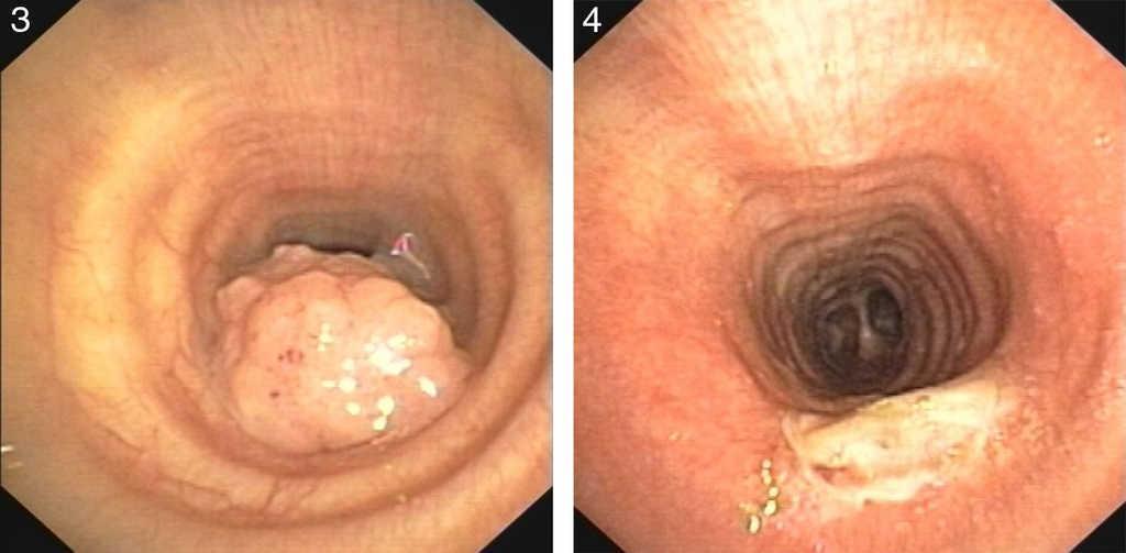 mild respiratory papillomatosis curse de viermi