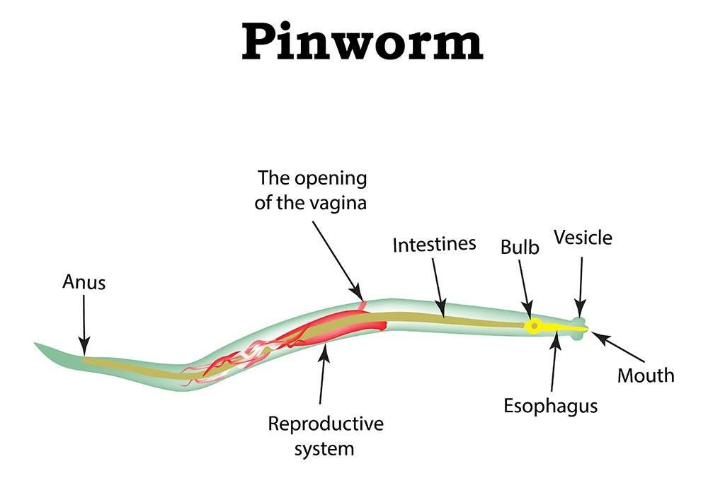 (PINWORMS) infection and enuresis - csrb.ro - Enterobiasis symptoms
