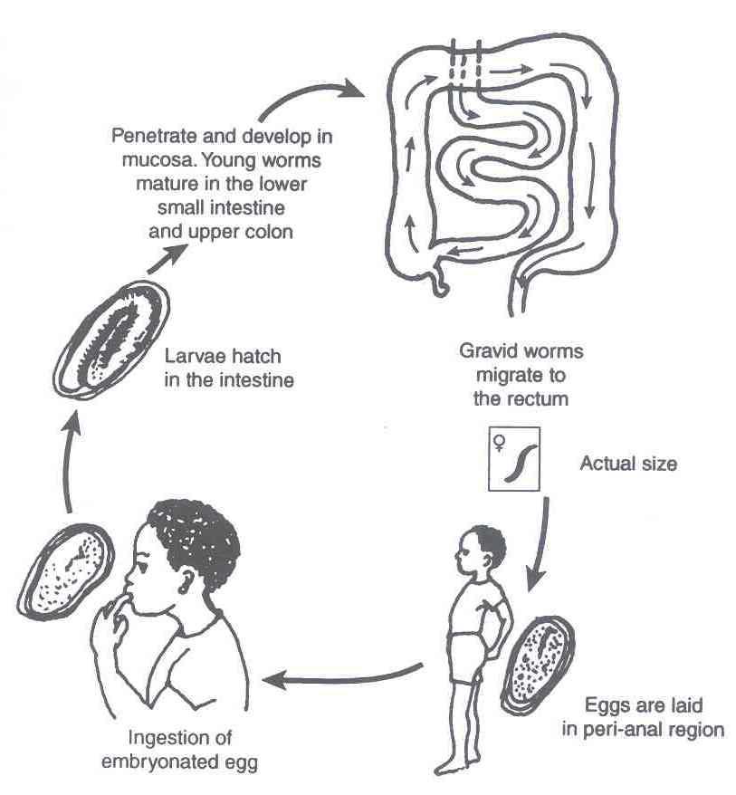 Larvas de oxyuris vermicularis - Oxiuros larvas, Oxiuroza (Enterobioza)