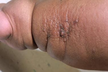 Lymphedema papillomas treatment Papillomatosis and lymphedema