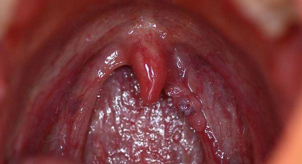 sintomas do cancer de garganta por hpv scapa de oxiuri natural