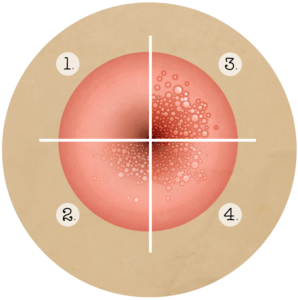Papiloma virus barbati. Studiu: jumatate dintre barbati, infectati cu virusul care provoaca cancer