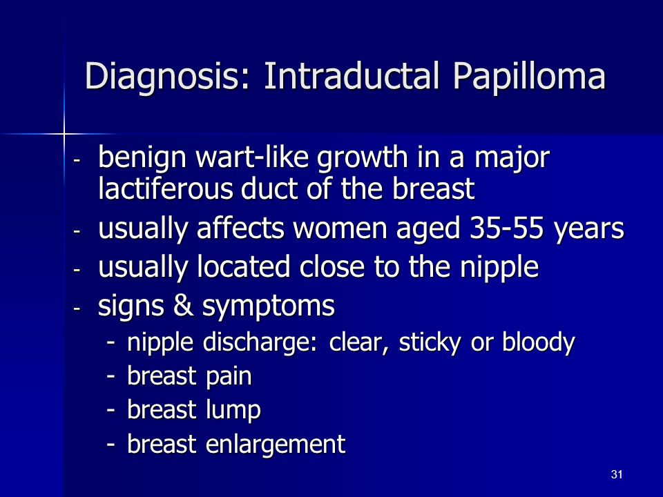 Intraductal papilloma treatment guidelines - Treatment for intraductal papilloma