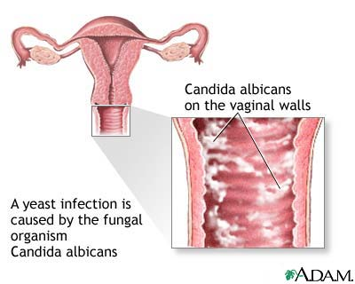 tratament pentru verucile genitale candidoza enterobiasis fisiopatologia