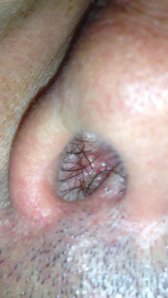 lesione da papilloma virus