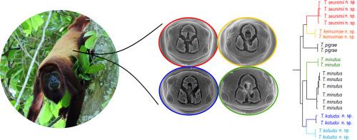 Tratamentul cu viermi pinworms al simptomelor adulților