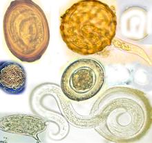 helminthiasis helminths tabel de produse de viermi