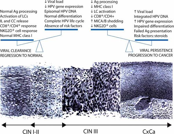 penza papiloma papillomavirus genital humain