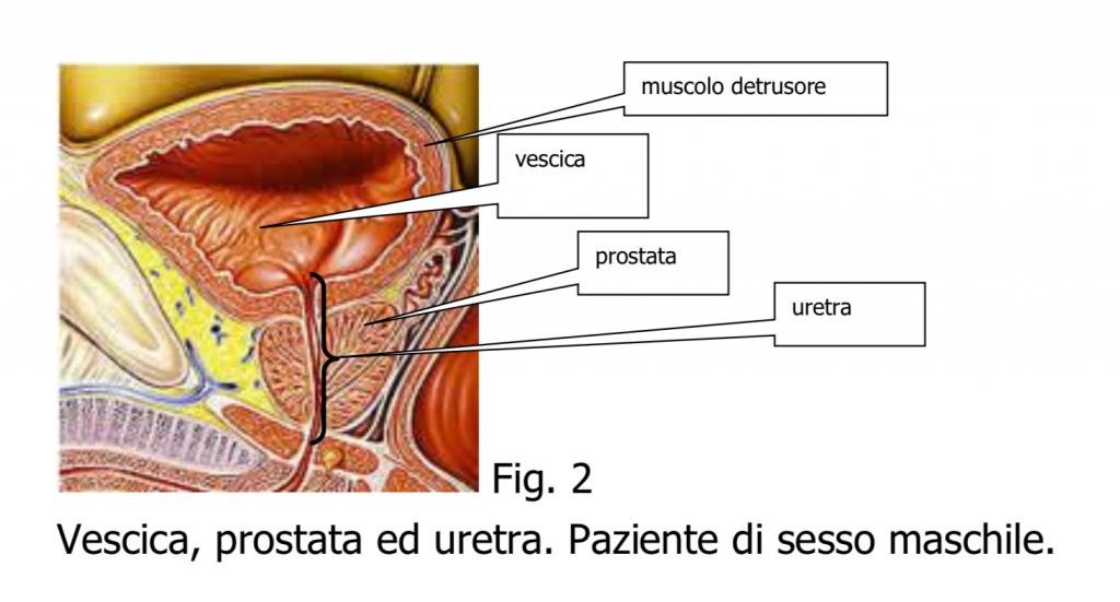 papilloma della vescica nell uomo virusuri viermi programe troiene