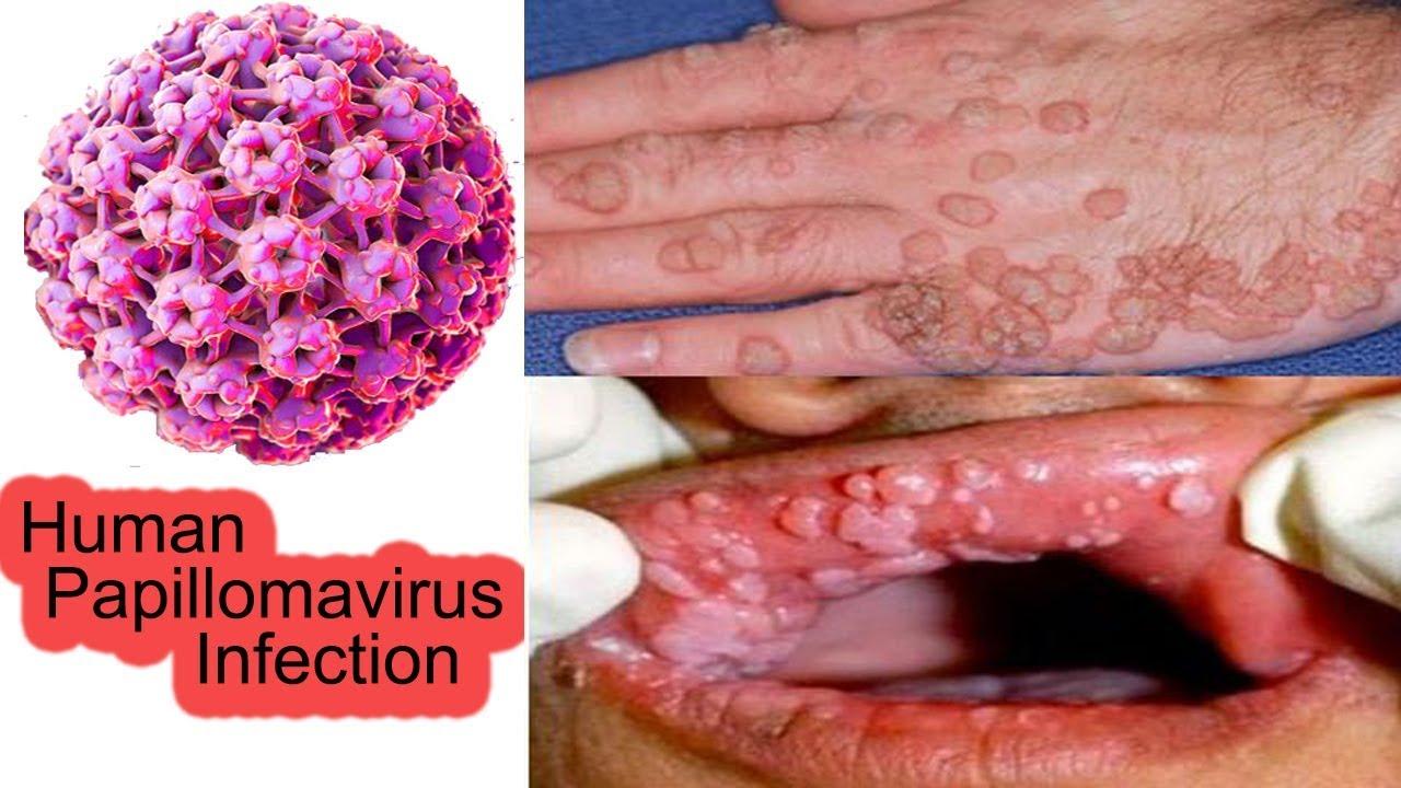 Papillomavirus femme detection, Gliste u stolici lecenje