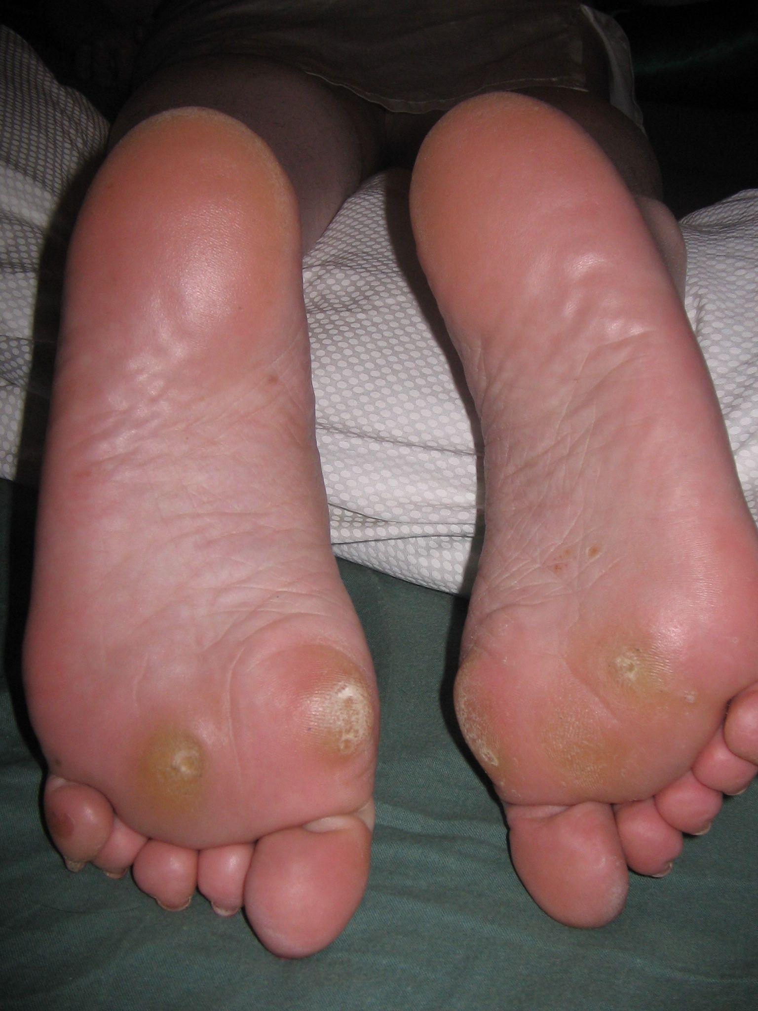hpv verrue pied