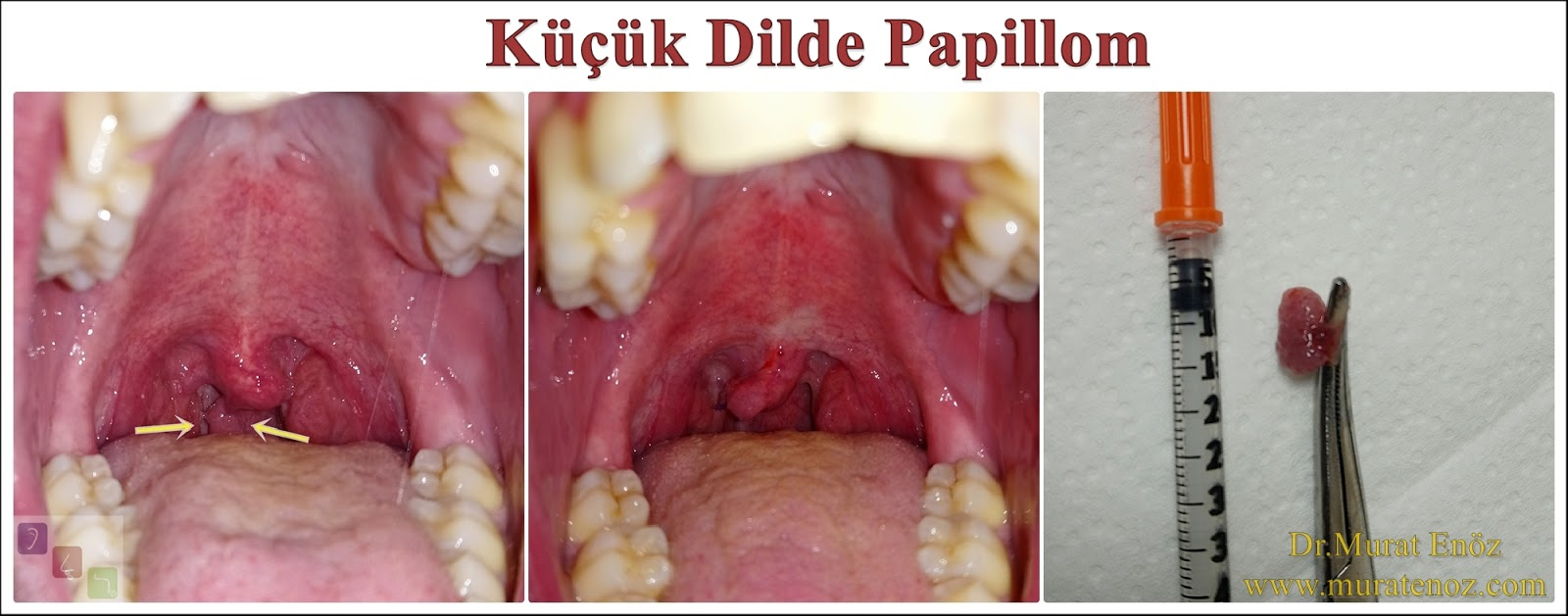 papiloma uvula transmision
