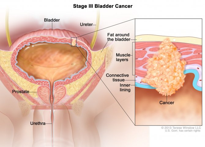 cancer vezica urinara barbati are intraductal papillomas cancerous