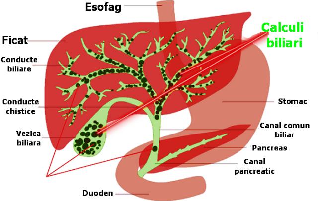 Detoxifiere vezica biliara