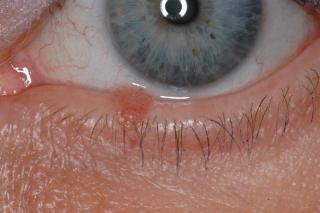 que es papiloma en los ojos hpv neck cancer symptoms