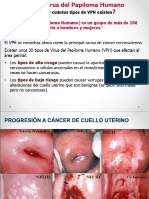 abdominal cancer vancer apendicular diagnostico y tratamiento