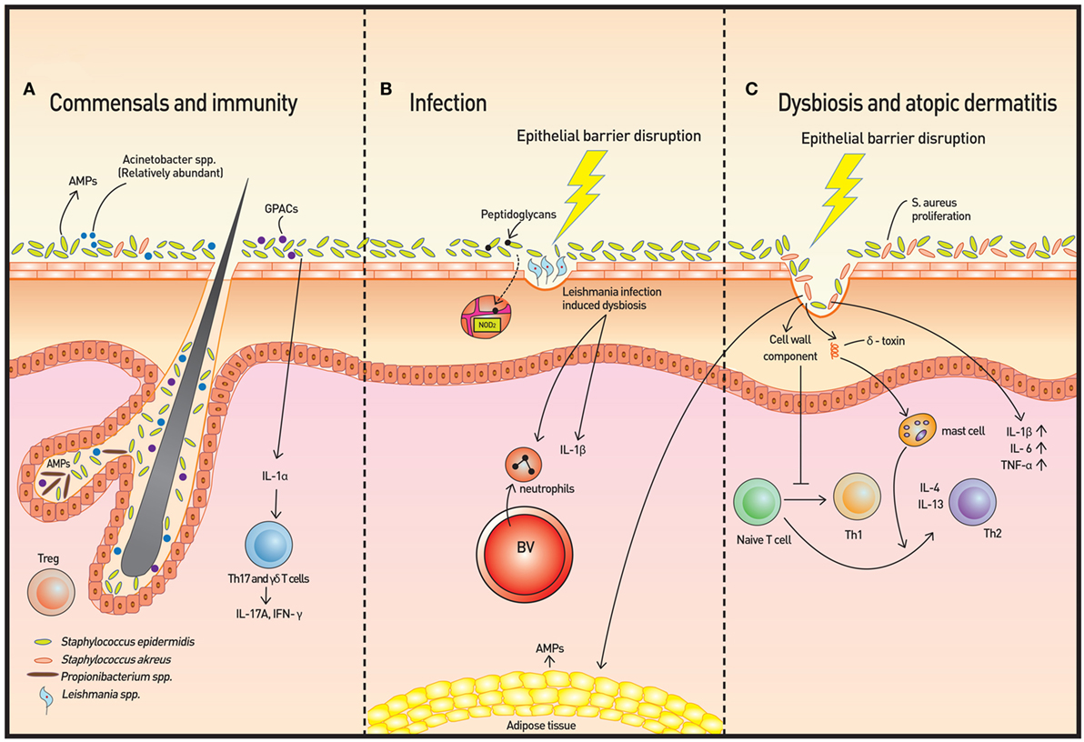 Dysbiosis skin problems. Gut Responses: Microbes, Inflammation, and Cancer cancer at tip of nose