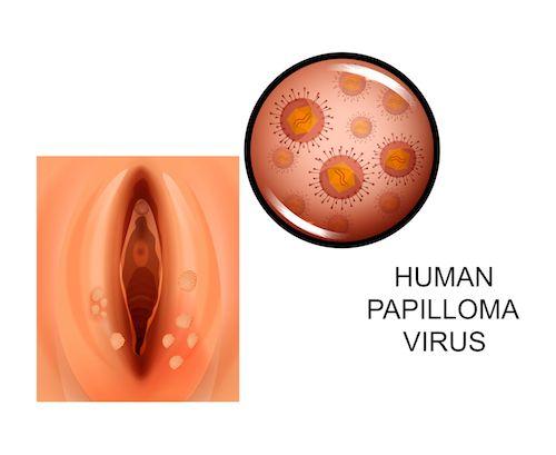 papillomavirus u muzov human papillomavirus in kenya