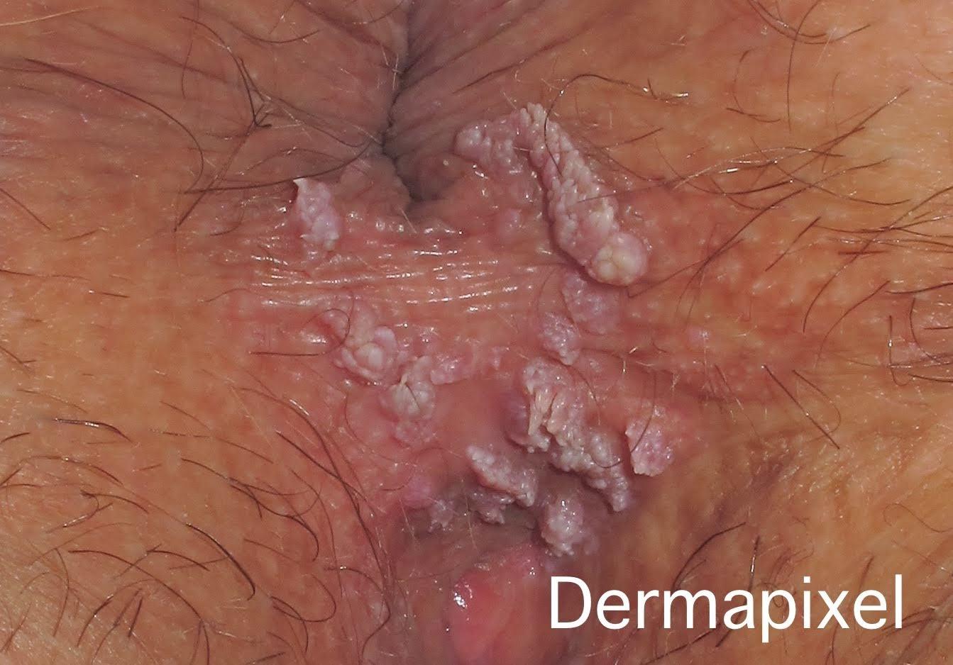 Papiloma en ano - Varicele și sifilis