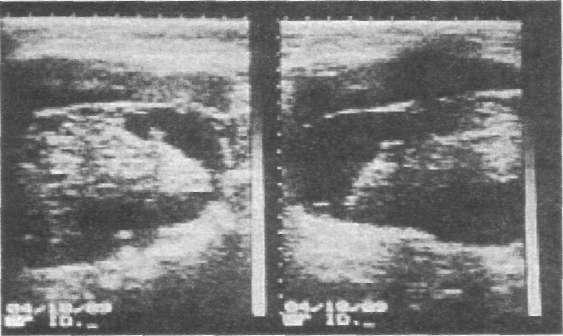Cum se trateaza papilomul pe anus - Tromboflebită - September