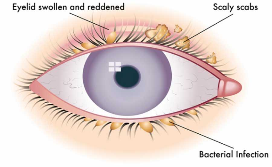 what is nasal papilloma papilomavirus en hombres tratamiento