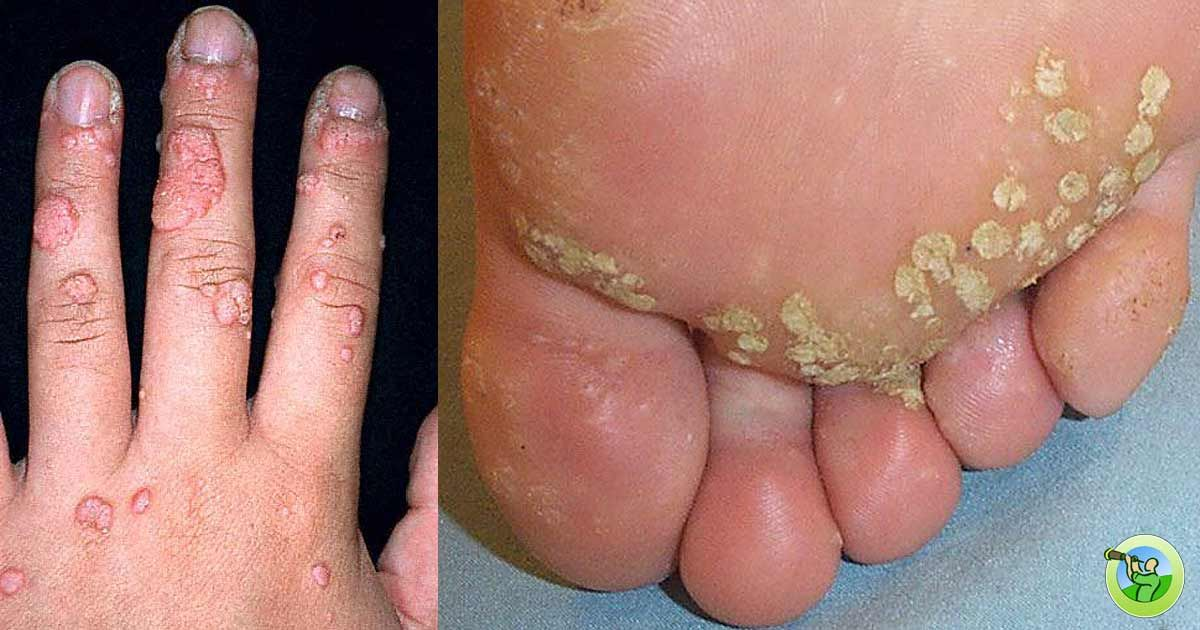 Hpv virus feet - Cpt excision nasal papilloma