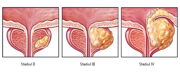 Cancerul de prostata - Rolul SCINTIGRAFIEI - Gauss Clinics
