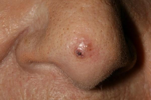 cancer de colon no poliposico parazitul este regele naturii