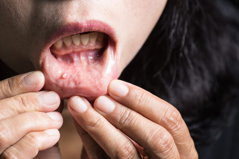 papillomavirus langue symptome