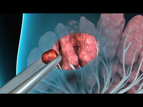 intraductal papilloma removal