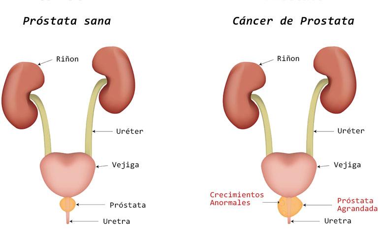 Cancer de prostata impotencia, Quando non fare il vaccino papilloma virus