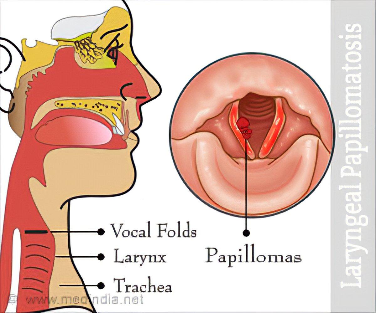 is laryngeal papillomatosis a std cum să eliminați papilomul pe pleoapă