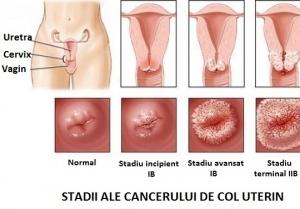 cancerul de ovare doare