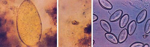 Enterobiasis pathophysiology, Wart virus cervical cancer Enterobiasis pathophysiology