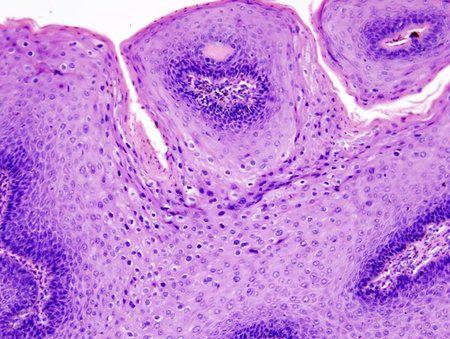 negi genitale pe membrana mucoasă infecție cu vierme umane