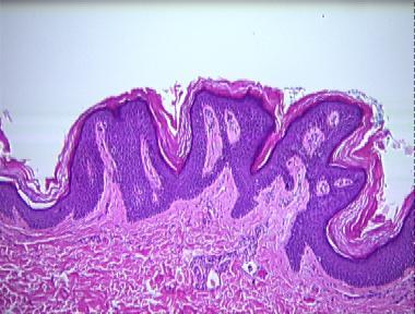 Confluent and reticulated papillomatosis groin. Înțelesul
