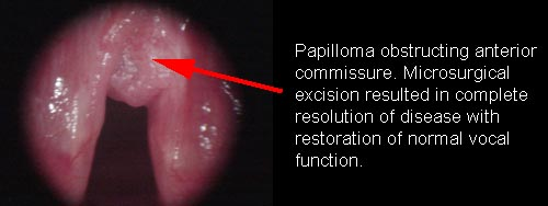 what causes laryngeal papilloma